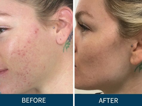 dermani MEDSPA franchise - skin rejuvenation before and after